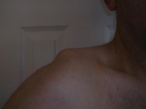 Shoulderseperationfeb05